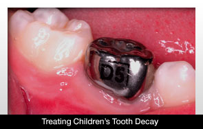 New Method Of Treating Children S Tooth Decay Explored