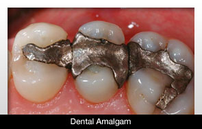 UN Treaty Could Phase Down Amalgam | Dentistry Today