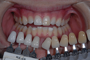 Foundation for a Successful Smile Makeover: Understanding Bleaching