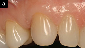 Guided Gingival Growth: Improving Aesthetics During Second-Stage