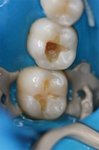 Golden Rules For Successful Composite Resin Restorations