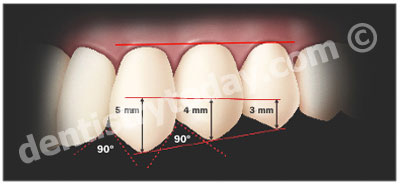 Bioesthetic Dentistry, Part 2 | Dentistry Today
