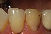 Facial composite restoration picture 2