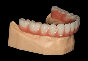 Simplifying Full-Arch Implantology With Digital Dentistry