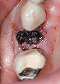 Tooth extraction bleeding