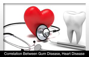 New Study Shows Correlation Between Gum Disease Heart