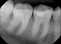 how to detect occlusal caries