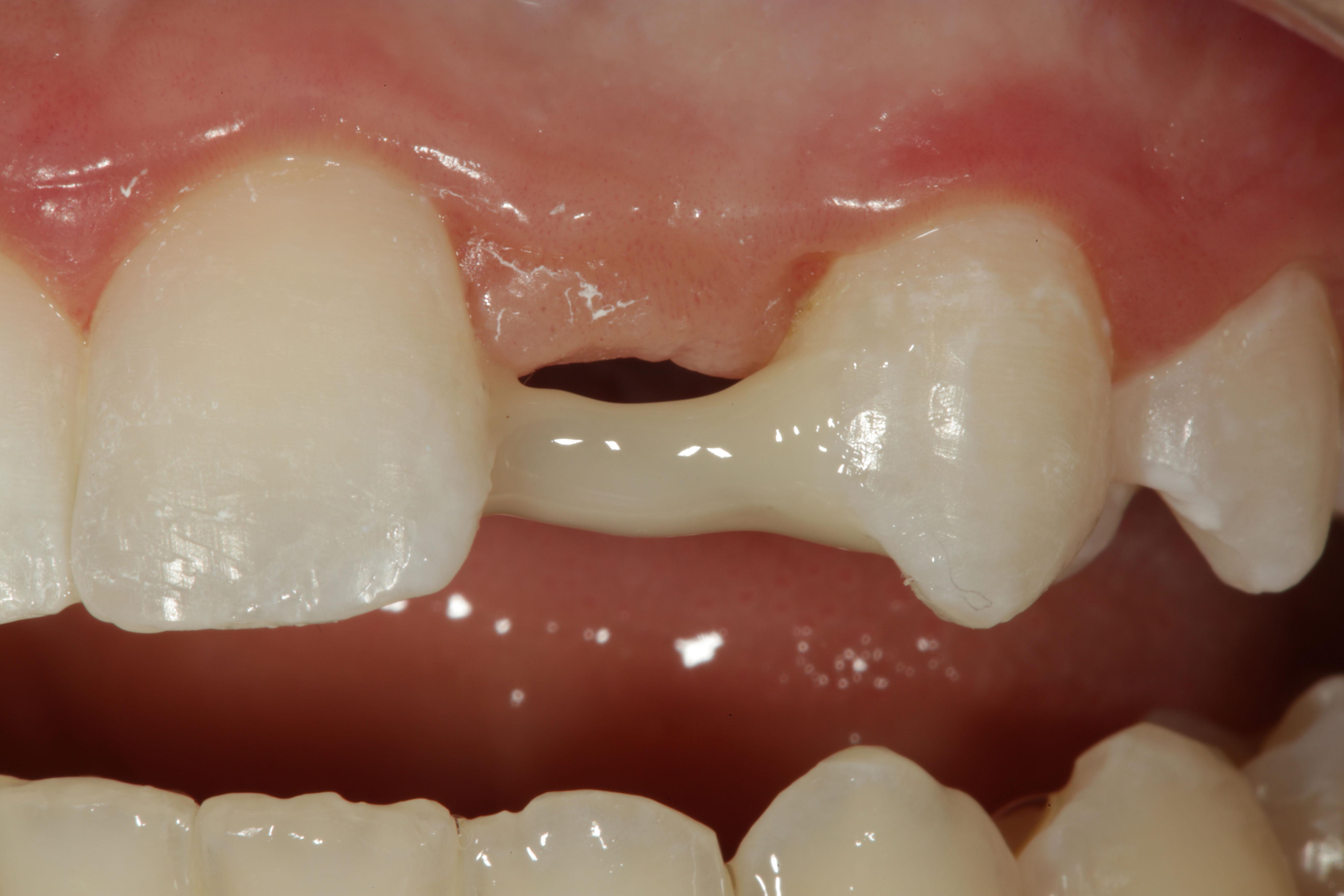 Facial tooth composite