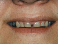 The Clinical Use Of Night Guards Occlusal Objectives Dentistry Today