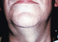 Clinical Conditions and Lesions Mimicking Salivary Gland