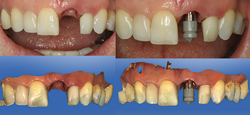 So What S Eating You Resorption Case Using An Aesthetic