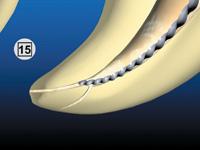 taper in endodontics