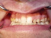 Dr Michael Tischler, Dentistry, Woodstock, NY