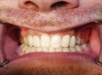 Replacing hopeless retained deciduous teeth in adults