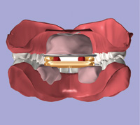 Using Intraoral Gothic Arch Tracing To Balance Full Dentures And