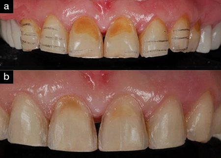 Pencil Marks On Tooth Structure After Removal Of APT Which Was Used As A Depth Guide For Preparation Teeth B