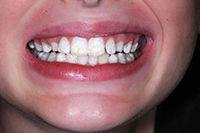 Minimally Invasive Treatment of Brown Spot Fluorosis | Dentistry Today