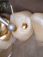 Gold Foil And Its Use In Modern Dentistry Dentistry Today