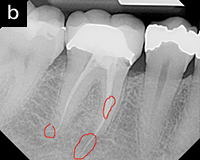 Is Endodontic Retreatment Passe Dentistry Today