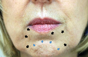 the lower face influences total aesthetics in injectable procedures
