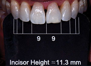Full Mouth Black Triangle Treatment Protocol Dentistry Today