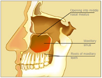 Sinusitis As a Source of Dental Pain | Dentistry Today