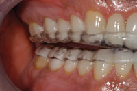 The E Appliance An Invaluable Therapeutic Tool Dentistry Today