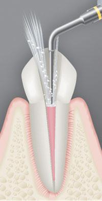 Ultrasonics In Endodontics Luxury Or Necessity