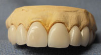 Dentistry Is Challenging Cosmetic Dentistry Even More