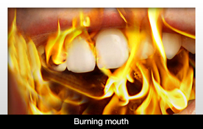 Burning Of The Mouth