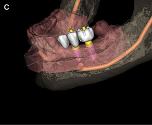 Treatment Planning for Dental Implants: An Update | Dentistry Today