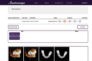 Digital Technology for Implant Dentistry: Considerations for