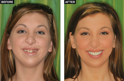 Aesthetic Management of the Cleft Palate Patient ...