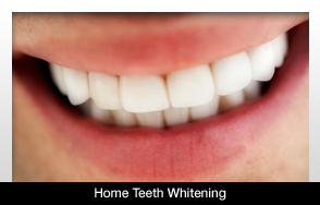 Home Teeth Whitening Can Cause Permanent Damage