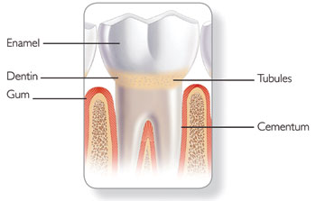 Dentin Hypersensitivity: Etiology, Risk Factors, and Prevention ...