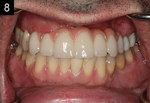 Laboratory and Prosthetic Reconstruction   Dentistry Today