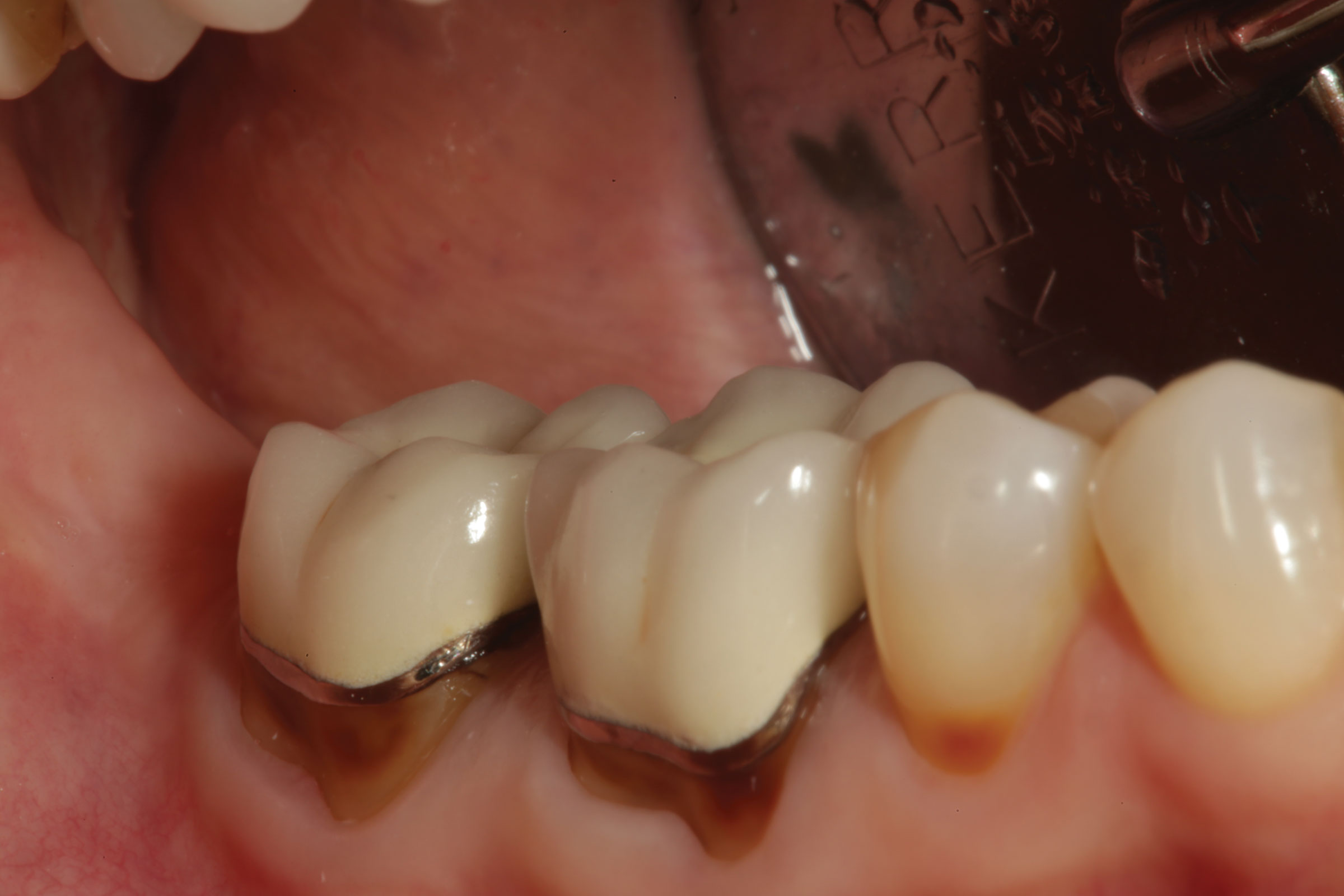 The Patient Presented With Old PFM Restorations On Teeth Nos 30 And 31 Recurrent Decay Facial Abfraction Necessitated Replacement