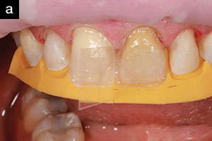 Direct Composite Veneers: A Viable Treatment Option