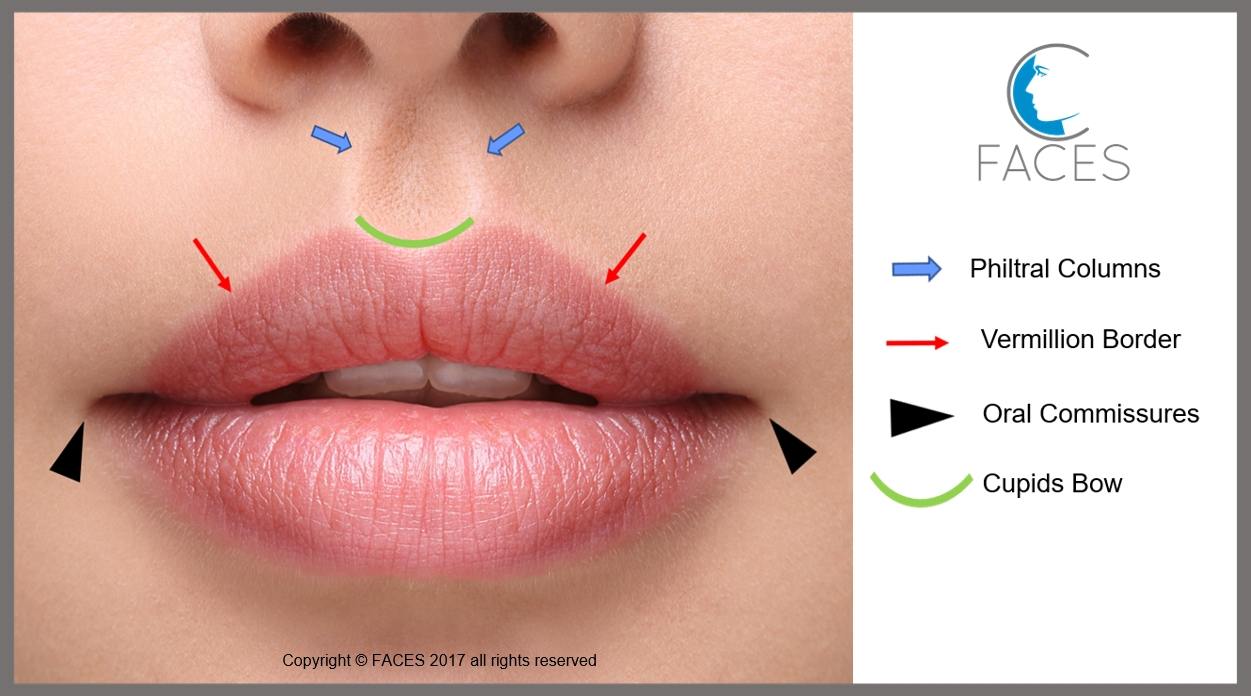 Why Lip Injections Look Fake—And How You Can Create Natural Looking ...
