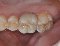 Aesthetic Posterior Crowns With Minimal Tooth Reduction