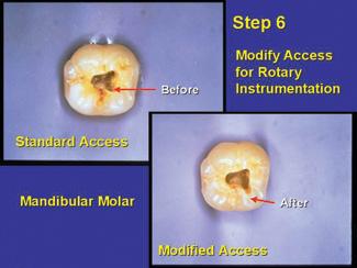 Mandibular molar anatomy