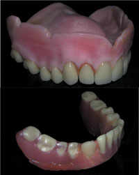 The Suction Cup Denture A Century Old Technology Reborn